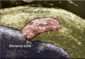 Calcific Tendinitis