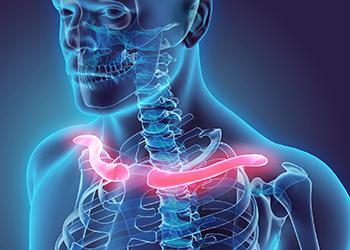 Collarbone Fracture Sydney Osteoporosis Randwick
