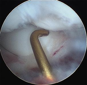 Durerile de spate mai mici cauzeaza febra la barbati