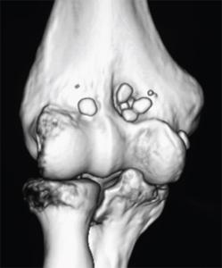 Tratamentul fracturii intra-articulare a articula?iei umarului