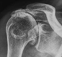 shoulder arthritis sydney  osteoarthritis randwick