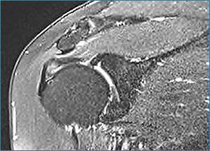 Shoulder Impingement Sydney Shoulder Treatments Randwick