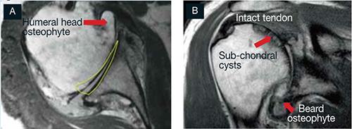 http://www.shouldersurgery.com.au/images/shoulder-osteoarthritis-image2.jpg
